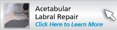 Acetabular Labral Repair